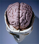 Figure of the brain
