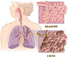 Image obtained from The National Heart, Lung, and Blood Institute (NHLBI) national campaign called COPD Learn More Breathe Better®.""